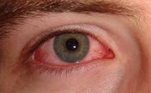 torra ögon syndrom